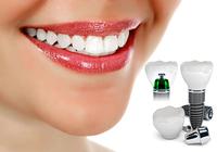 Имплантация зубов - лучший метод современного протезирования.