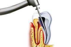 Лечениеканалов зуба(эндодонтическоелечение)