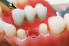 Зубные мосты (мостовидные зубные протезы)