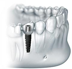 """Метод двухэтапной класической имплантации зубов  дает """"вечный"""" результат. Служа пациентам на протяжении всей жизни, импланты не требуют замены."""