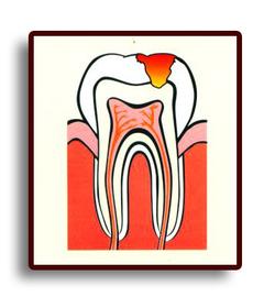 Что такое кариес  зубов