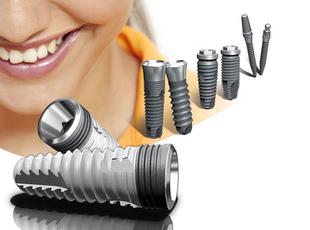 Наиболее оптимальным считается комбинированная имплантация зубов– это использование нескольких методов имплантации для восстановления зубов одновременно.