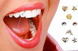Скайсы- зубные украшения
