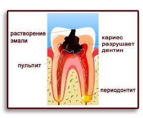кариес-пульпит-периодонтит