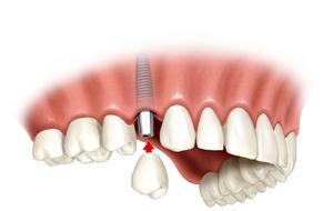 Имплантация зубов - это самый эффективный и наиболее  безопасный способ восстановления утраченных зубов  в  современной стоматологии.
