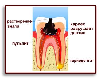 Процесс развития от пульпита до периодонтита