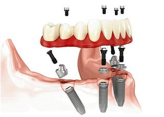 Установка зубных протезов с опорой на импланты- это самый эффективный и наименее болезненный способ протезирования в современной стоматологии.