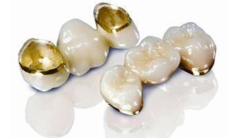 Зубные коронки- это специальные колпачки на зубы,  замещающие частично или полностью разрушенную часть  зуба.