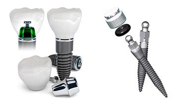 Мини-импланты являются чрезвычайно ценными прежде  всего в случае полной адентии (полного отсутствия) зубов,  и позволяют улучшить фиксацию полных съемных протезов.