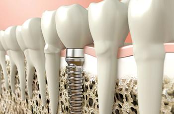 Имплантация зубов-  это самый надежный метод современного протезирования, это уникальный способ вживления опорной конструкции для установки искусственного зуба в костную ткань.