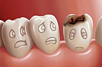 Кариес зубов – это процесс разрушения (гниения) твердых тканей зубов в следствие плохой гигиены полости рта, протекающий при наличии в полости рта пищевых остатков и обязательном участии микроорганизмов.