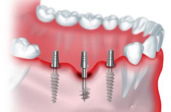 Методика имплантации зубов базальными имплантами позволяет осуществлять протезирование одномоментно- то есть в течении 3-5 дней после операции.