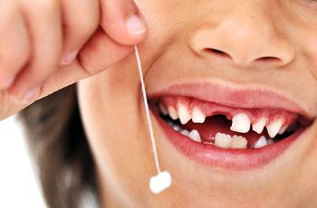 Безболезненное удаление зубов по технологии Profzub. Вам не стоит бояться!