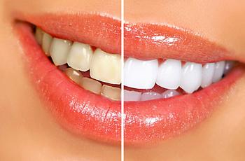 Профессиональное отбеливание зубов. Плюсы и минусы технологии.