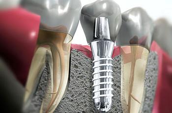 Сегодня с помощью применения хирургического шаблона врач может точно определить место установки имплантатов и провести операцию без разреза десны и откидывания слизисто-надкостничного лоскута.