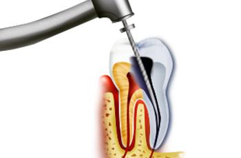 Лечениеканалов зуба(эндодонтическоелечение)-по правуможноназватьосновополагающимвовсейтерапевтическойстоматологии.