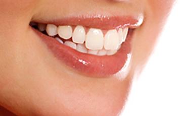 Ультраниры - это новейшая инновационная разработка в области реставрации передних зубов, позволяющая качественно и быстро восстанавливать и корректировать ваши зубы.