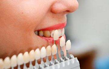 Виниры и люминиры - это виды протезов без обточки зубов, необходимые для восстановления красоты Вашей улыбки  за один сеанс.