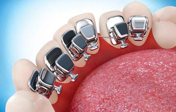 Выбор оптимального метода исправления прикуса. Ортодонтия полного цикла. Профилактика кариеса и других повреждений эмали во время процедуры.