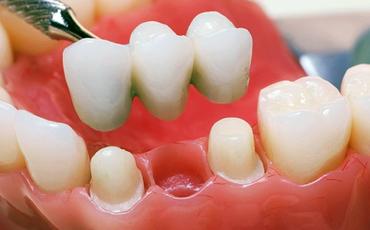 Зубные мосты (мостовидные зубные протезы) - несколько зубных коронок, объединенных между собой. Они, как правило, служат для восстановления одного- двух отсутствующих подряд зубов.