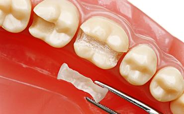 Зубные вкладки- это частичное  протезирование с использованием манипуляции  художественной реставрации зубов. Используются при значительном  разрушении части зуба и являются промежуточным вариантом  между пломбой и коронкой.