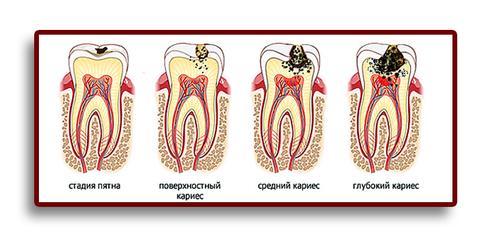 Почему возникает кариес зубов.
