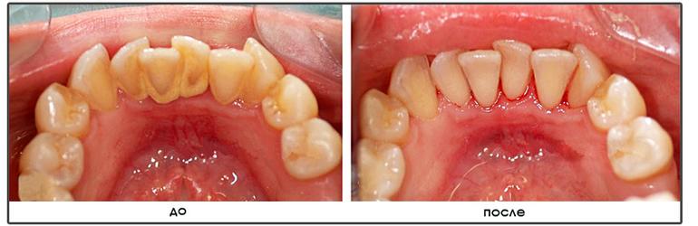 Заказав услугу гигиенической чистки зубов, в особо сложных и запущенных случаях лечение гингивита начинается с удаления зубного налета и камней.