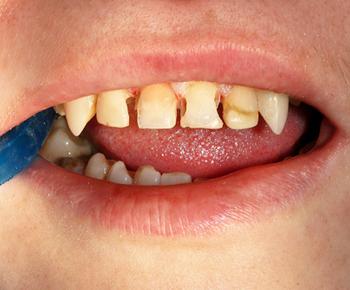 Художественная реставрация передних зубов 2- до