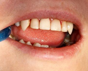 Художественная реставрация передних зубов 2- после